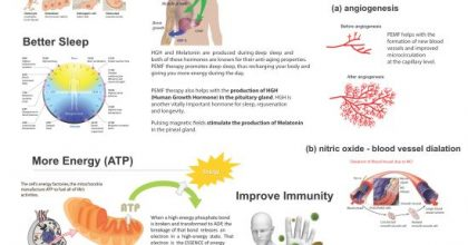 Benefits of PEMF Therapy